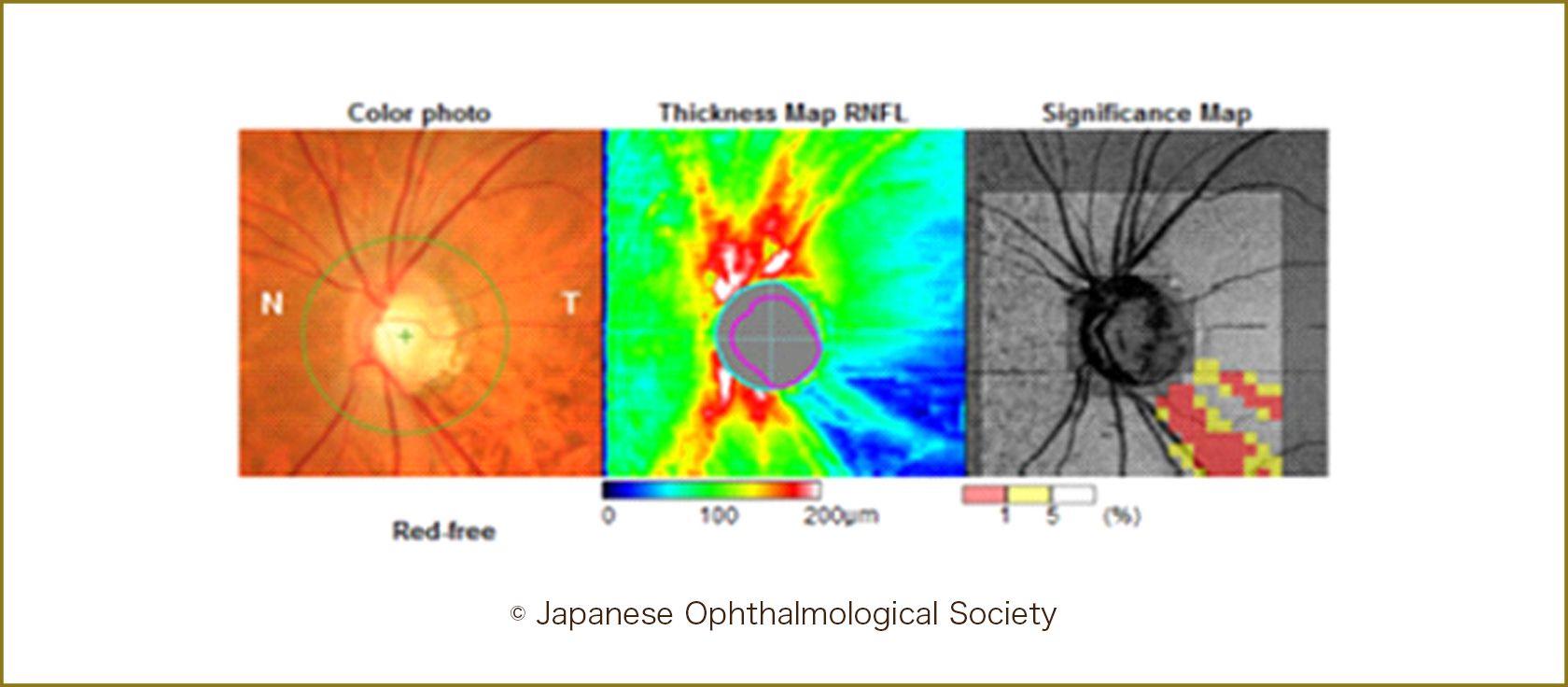 OCTによる視神経線維欠損の測定
