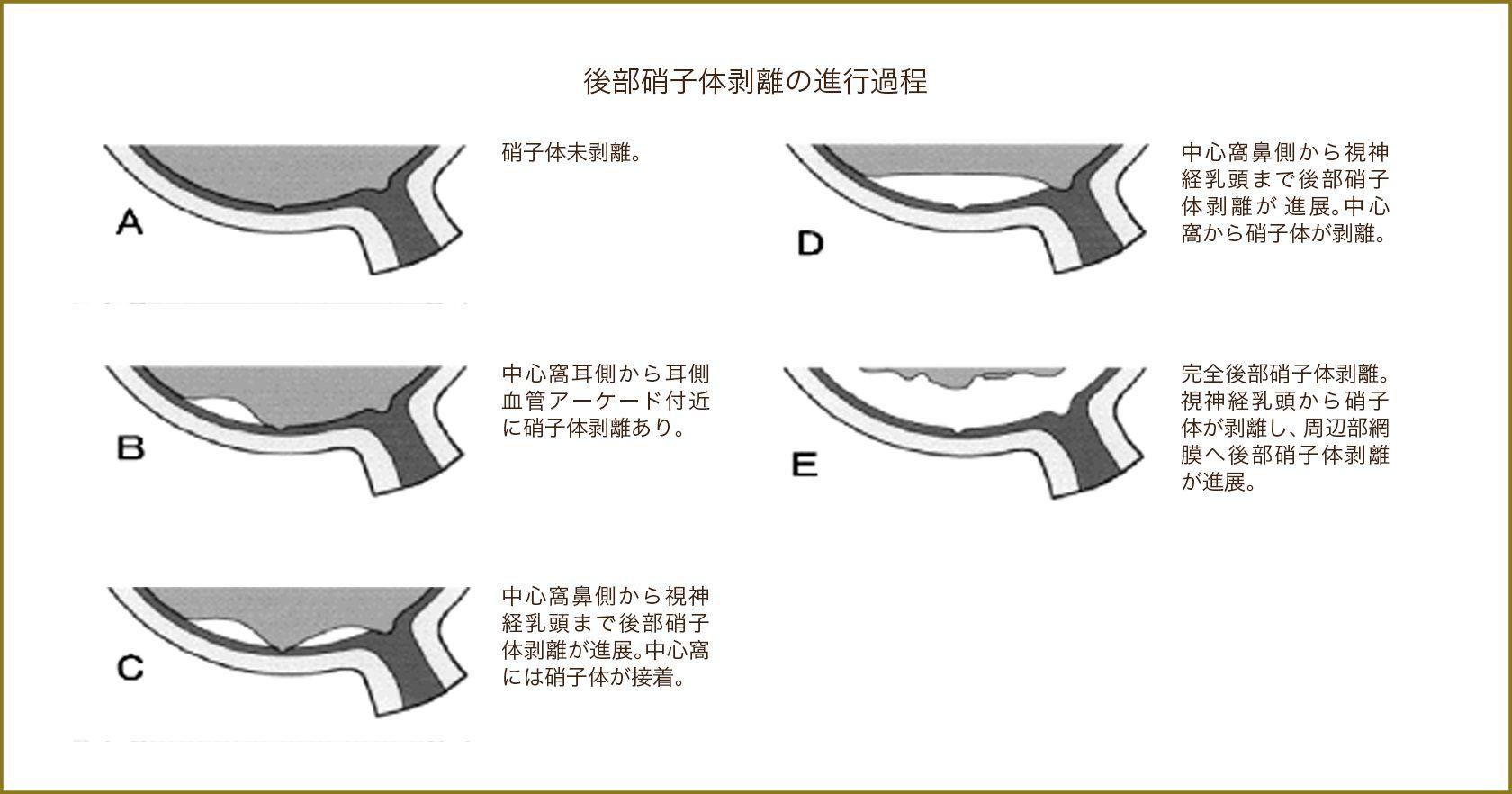 後部硝子体剥離の進行過程