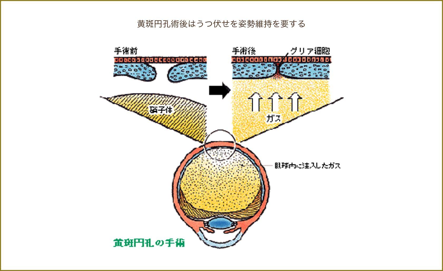 黄斑円孔術後はうつ伏せを姿勢維持を要する