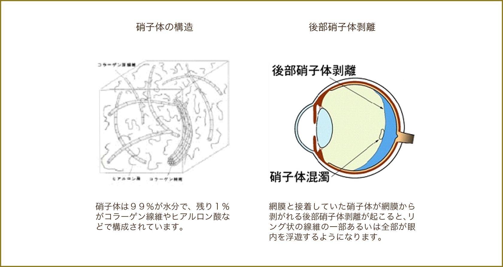 硝子体の構造,後部硝子体剥離