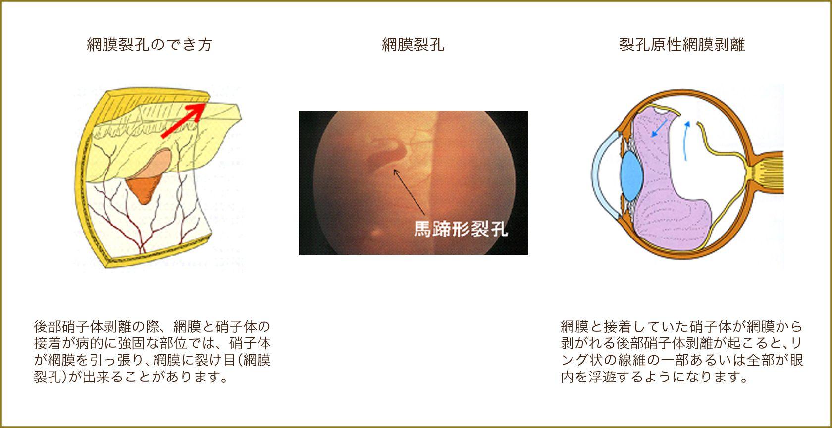 網膜裂孔のでき方,網膜裂孔,裂孔原性網膜剥離
