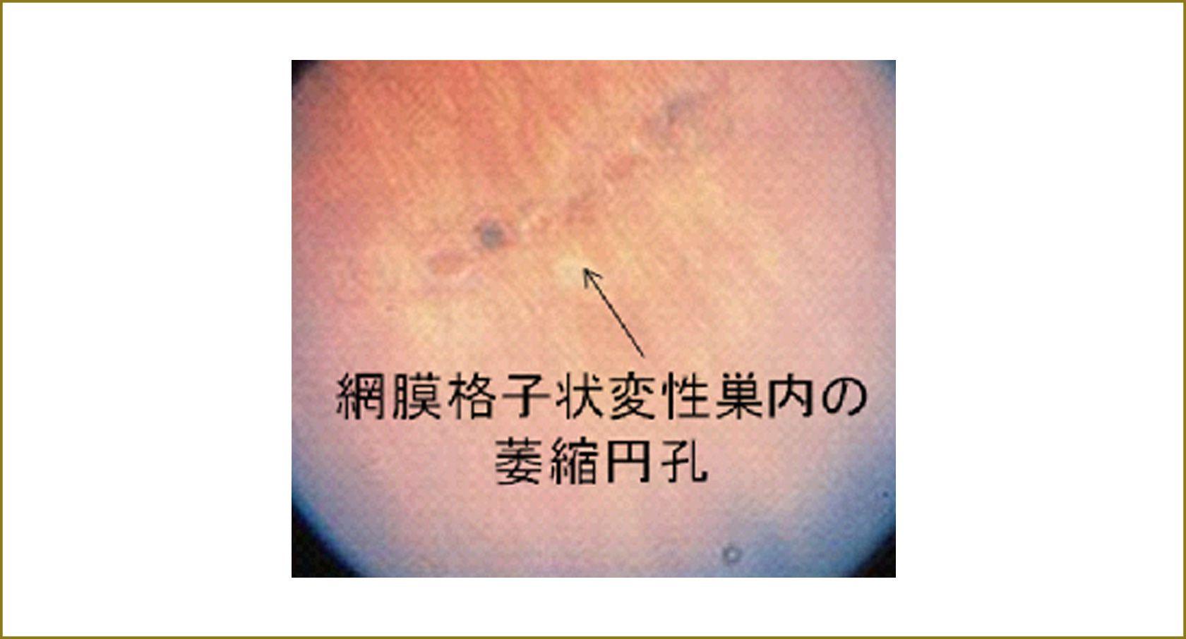 網膜格子状巣内の萎縮網膜円孔