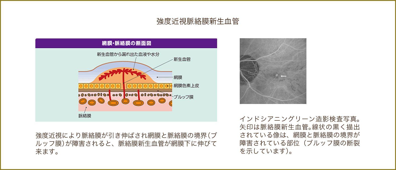脈絡膜新生血管