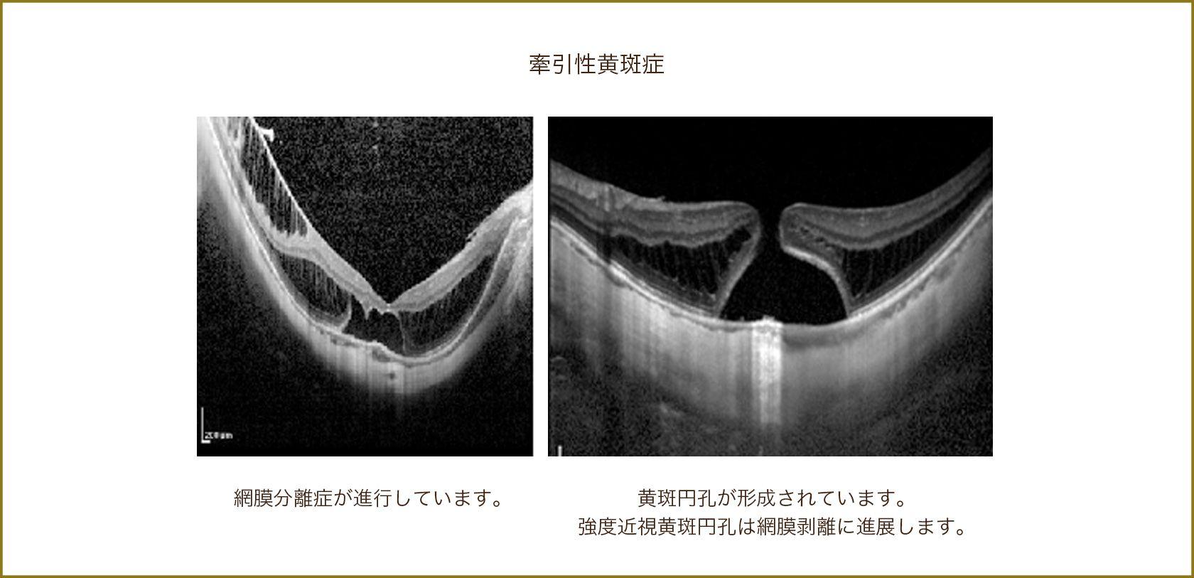 近視性牽引性黄斑症