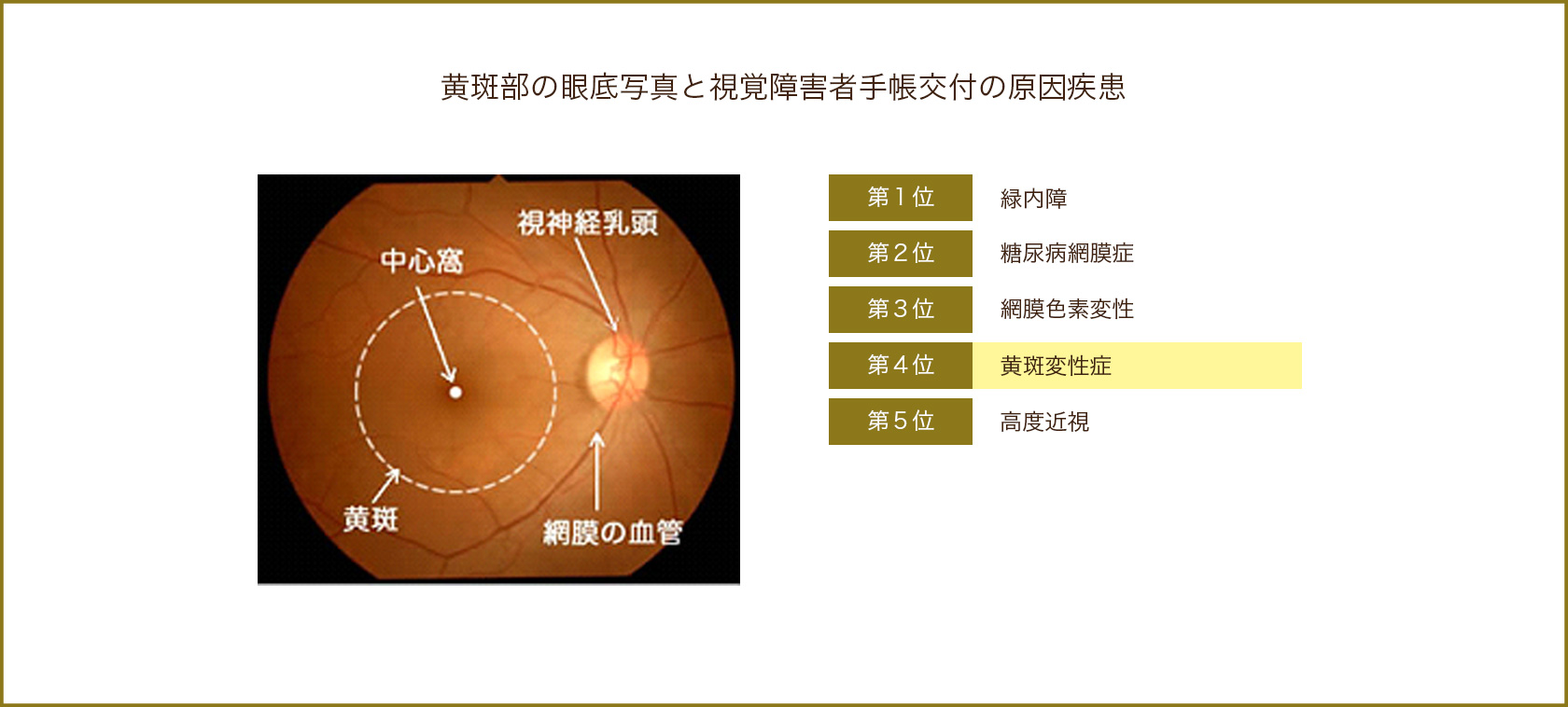 黄斑部の眼底写真と視覚障害者手帳交付の原因疾患